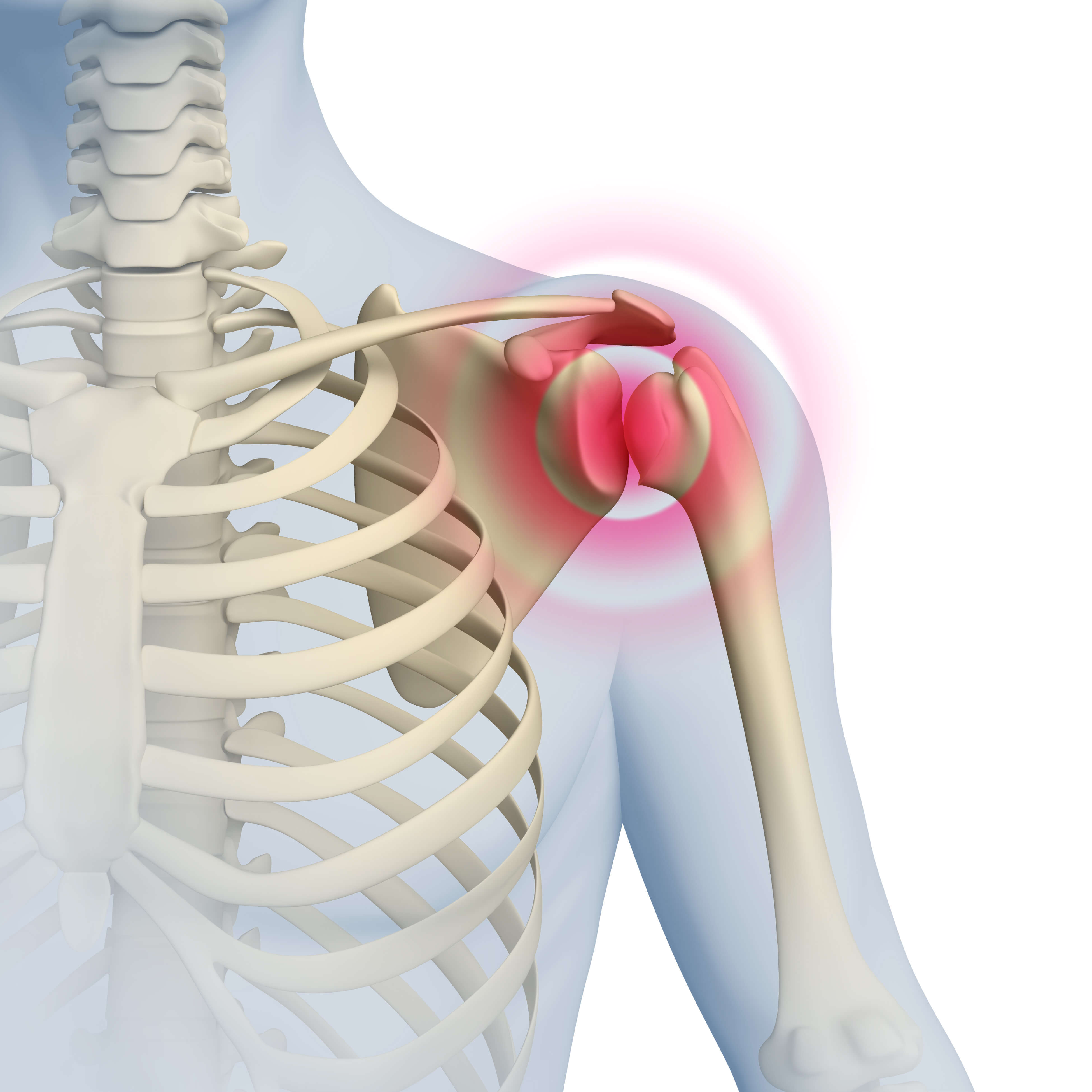shoulder pain 5 red flags