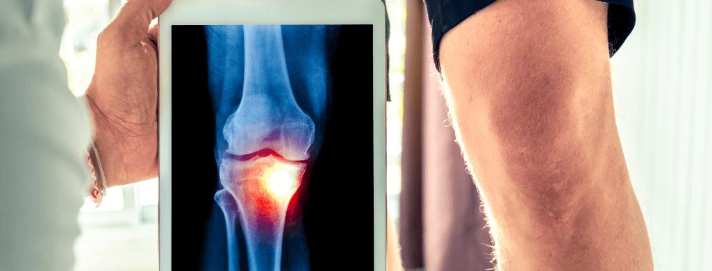 patient getting knee scan